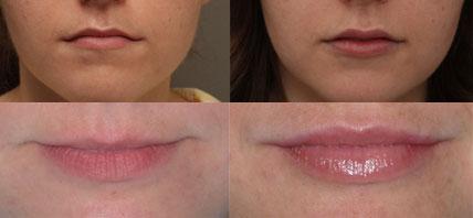 Efekty modelowania, powiększania ust | Dermestetic w Szczecinie