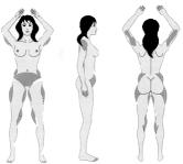wystepowanie cellulitu u kobiet
