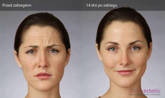 Botoks szczecin efekty po zabiegu