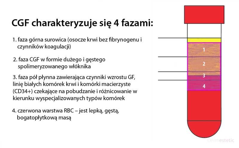 cgf 4 fazy szczecin