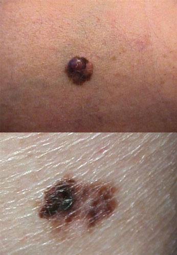 czerniak nowotwór skóry