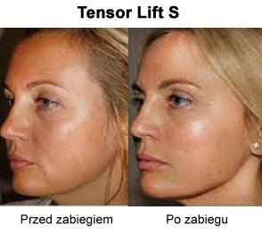 Efekty miękkiego liftingu twarzy