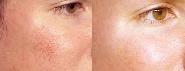efekt usuwania pajączkow na twarzy