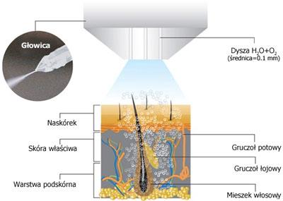 Mezoterapia bezigłowa w Szczecinie
