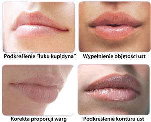 Modelowanie kształtu i powiększanie ust w Szczecinie