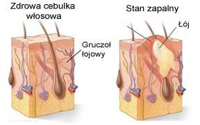 Przyczyny trądziku