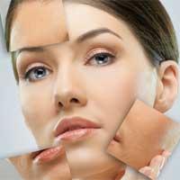Przyczyny i rodzaje przebarwień na skórze