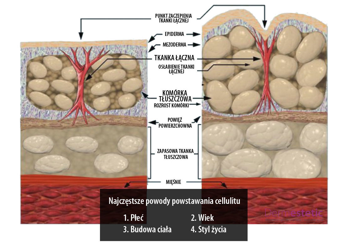 przyczyny powstawania cellulitu
