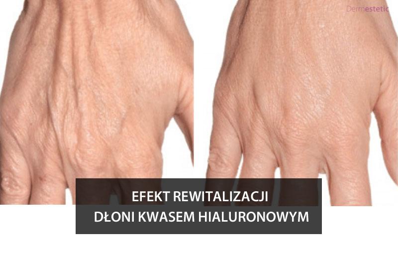 Efekt rewitalizacji dłoni Szczecin