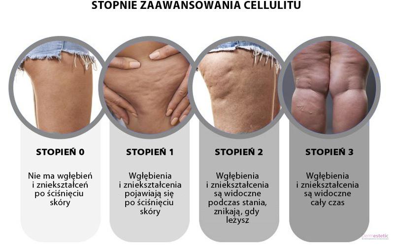 stopnie zaawansowania cellulitu