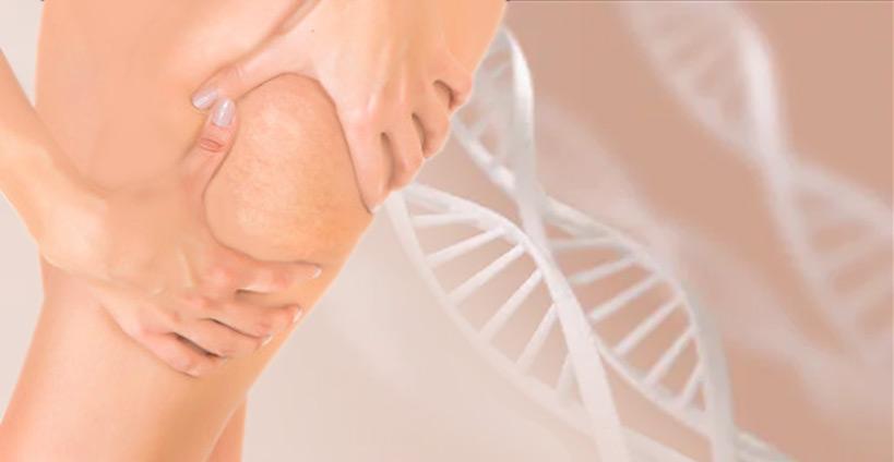 usuwanie cellilitu szczecin