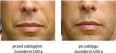 wypełnienie bruzd nosowo-wargowych